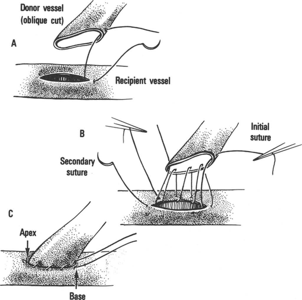 intestinal anastomosis technique pdf