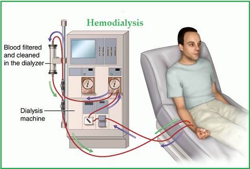 hemodialysis procedure pdf